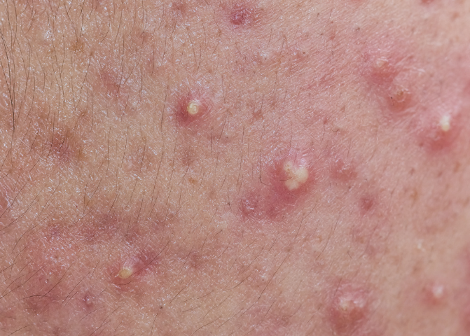 Blocked and inflamed sebaceous glands causing Acne.