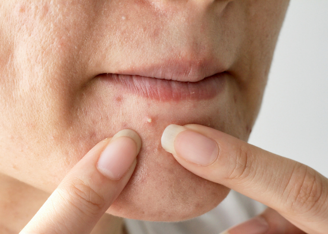 Acne squeezing posts